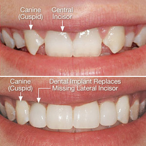 People Born with Missing Teeth can Still Gain a Beautiful Smile